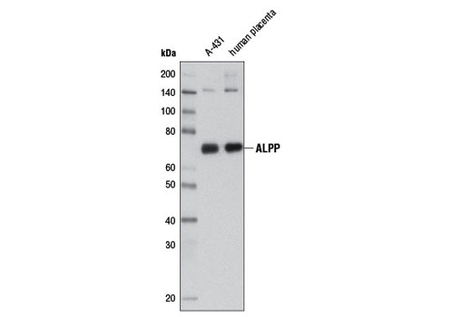 Monoclonal Antibody - ALPP (3E5C7) Mouse mAb - Western Blotting, UniProt ID P05187, Entrez ID 250 #8681, Phosphatases