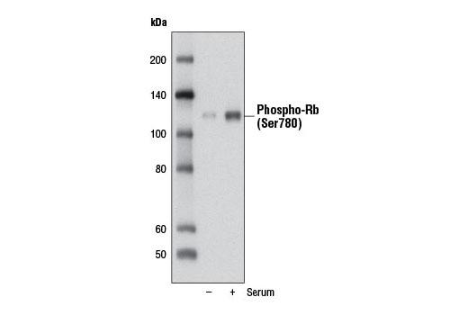 Western blot analysis of extracts from WI-38 cells, serum-starved for 3 days (-) or serum-starved for 3 days followed by treatment with 10% serum for 2 days (+), using Phospho-Rb (Ser780) (D59B7) Rabbit mAb.