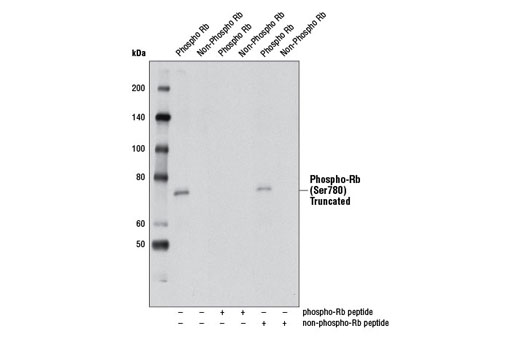 Western blot analysis of phosphorylated or nonphosphorylated recombinant, truncated Rb, without or with Rb blocking peptide, using Phospho-Rb (Ser780) (D59B7) Rabbit mAb.