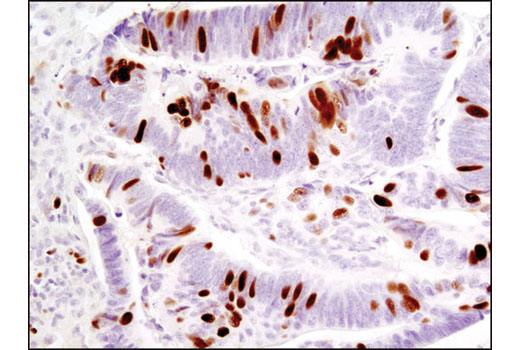 Immunohistochemical analysis of paraffin-embedded human colon carcinoma using Phospho-Rb (Ser807/811) (D20B12) XP<sup>®</sup> Rabbit mAb.