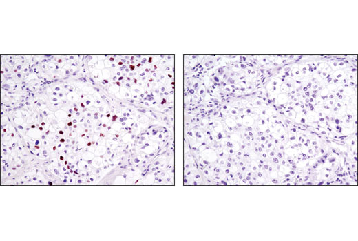 Immunohistochemical analysis of paraffin-embedded human lung carcinoma, control (left) or λ phosphatase-treated (right), using Phospho-Rb (Ser807/811) (D20B12) XP<sup>®</sup> Rabbit mAb.