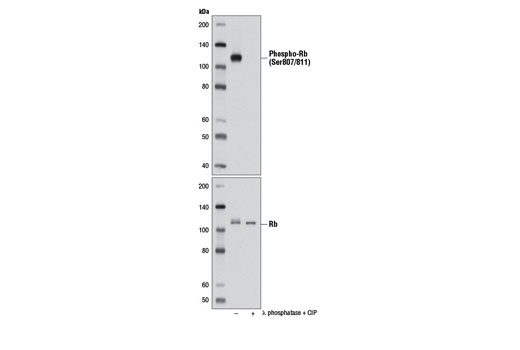 Western blot analysis of extracts from MCF7 cells, untreated (-) or treated with calf intestinal phosphatase (CIP) and λ phosphatase (+), using Phospho-Rb (Ser807/811) (D20B12) XP<sup>®</sup> Rabbit mAb (upper) or Rb (4H1) Mouse mAb #9309 (lower).
