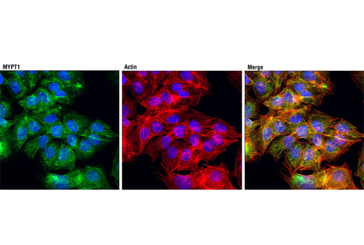 Confocal immunofluorescent analysis of Hep G2 cells using MYPT1 (D6C1) Rabbit mAb (green). Actin filaments were labeled with DY-554 phalloidin (red). Blue pseudocolor = DRAQ5<sup>®</sup> #4084 (fluorescent DNA dye).