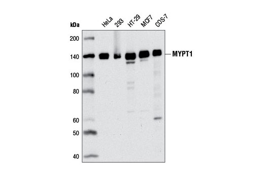 Western blot analysis of extracts from various cell lines using MYPT1 (D6C1) Rabbit mAb.