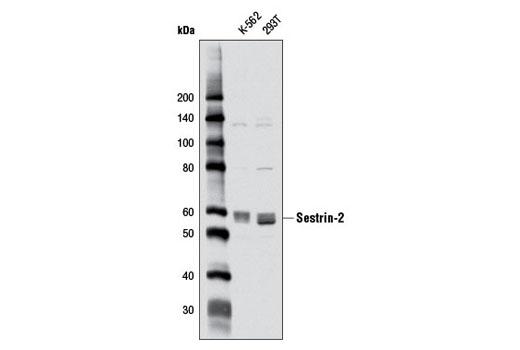 Monoclonal Antibody - Sestrin-2 (D1B6) Rabbit mAb - Immunoprecipitation, Western Blotting, UniProt ID P58004, Entrez ID 83667 #8487, Cell Cycle / Checkpoint Control