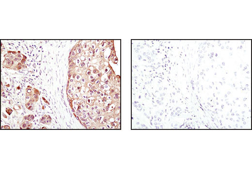 Immunohistochemical analysis of paraffin-embedded human breast carcinoma using 4E-BP1 (53H11) Rabbit mAb in the presence of control peptide (left) or 4E-BP1 blocking peptide #1053 (right).