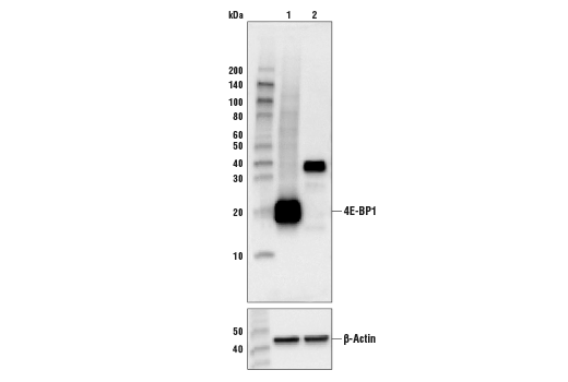 Western Blotting Image 1: 4E-BP1 (53H11) Rabbit mAb