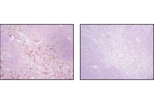 Immunohistochemical analysis of paraffin-embedded mouse spleen, 4E-BP1/2 wild type (left) or 4E-BP1 knockout (right), using 4E-BP1 (53H11) Rabbit mAb. 4E-BP wild type and knockout tissues kindly provided by Dr. Nahum Sonenberg, McGill University.