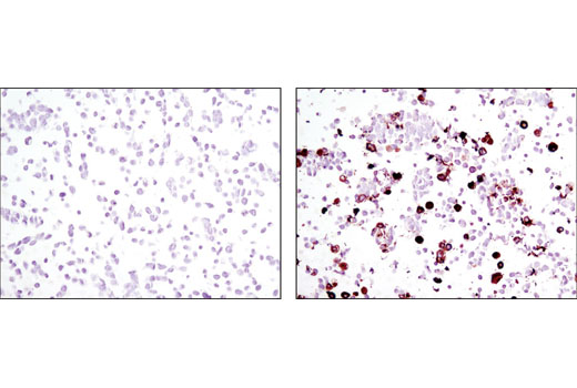 Immunohistochemical analysis of paraffin-embedded 293T cell pellets, control (left) or ROS-DYKDDDDK Tag transfected (right), using DYKDDDDK Tag (9A3) Mouse mAb.