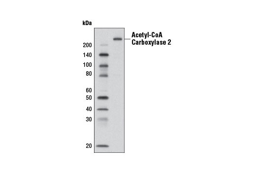 Western blot analysis of extracts from human adipocytes using Acetyl-CoA Carboxylase 2 (D5B9) Rabbit mAb.