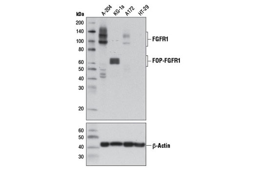 Western blot analysis of extracts from A-204 (FGFR1 positive), KG-1a (FGFR1 oncogenic partner-FGFR1 fusion), A172 (FGFR1 low), and HT-29 (FGFR1 negative) cells using FGF Receptor 1 (D8E4) XP<sup>®</sup> Rabbit mAb (upper) and β-Actin (D6A8) Rabbit mAb #8457 (lower).