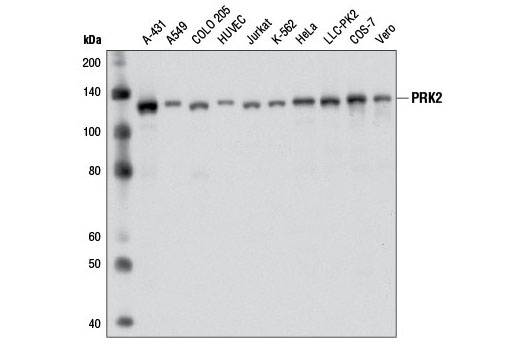 Western blot analysis of extracts from various cell lines using PRK2 (D10A10) Rabbit mAb.