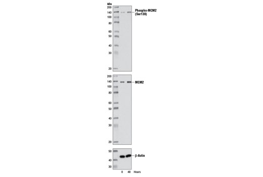Western blot analysis of extracts from WI-38 cells, synchronized by serum starvation, using Phospho-MCM2 (Ser139) Antibody (upper), MCM2 (D7G11) XP<sup>®</sup> Rabbit mAb #3619 (middle), and β-Actin (13E5) Rabbit mAb #4970 (lower). Cells were synchronized for 72 hours and then released by addition of serum and harvested at the times indicated.