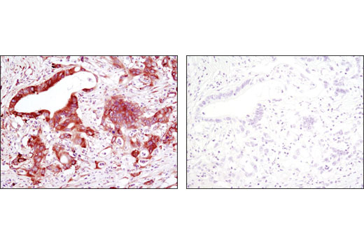 Immunohistochemical analysis of paraffin-embedded human colon carcioma using eIF4GI (D6A6) Rabbit mAb in the presence of control peptide (left) or antigen-specifc peptide (right).
