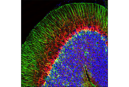 Confocal immunofluorescent analysis of rat cerebellum using Neurofilament-L (C28E10) Rabbit mAb (Alexa Fluor<sup>®</sup> 594 Conjugate) (red) and GFAP (GA5) Mouse mAb #3670 (green). Blue pseudocolor = DRAQ5<sup>®</sup> #4084 (fluorescent DNA dye).
