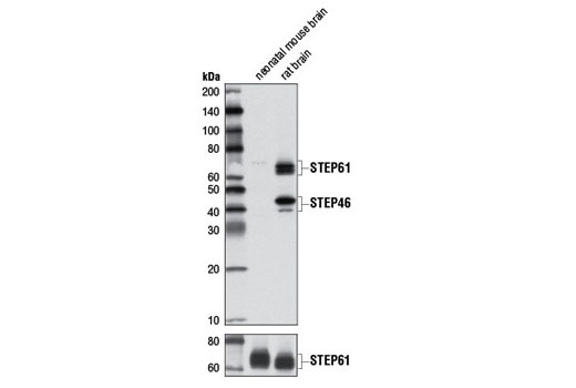 Monoclonal Antibody - STEP (D7E2) Rabbit mAb - Immunoprecipitation, Western Blotting, UniProt ID P54829, Entrez ID 84867 #9017, Neuroscience