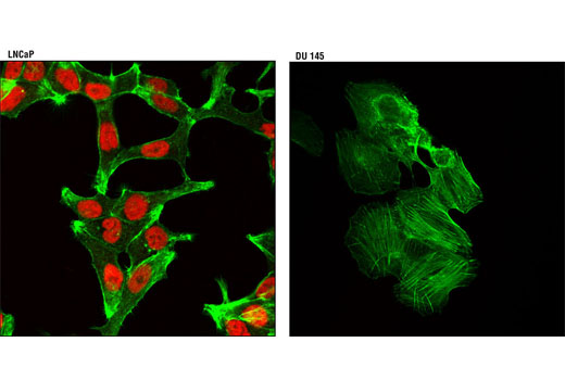 Confocal immunofluorescent analysis of LNCaP (positive, left) and DU 145 (negative, right) cells using Androgen Receptor (D6F11) XP<sup>®</sup> Rabbit mAb (Alexa Fluor<sup>® </sup>555 Conjugate) (red). Actin filaments were labeled with Alexa Fluor<sup>®</sup> 488 phalloidin (green).