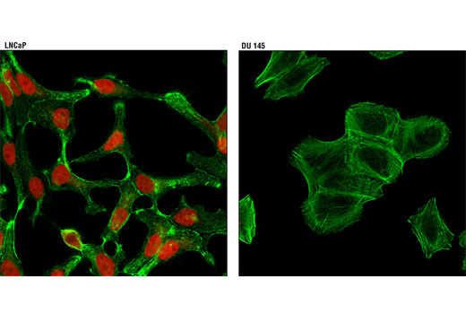 Confocal immunofluorescent analysis of LNCaP (positive, left) and DU 145 (negative, right) cells using Androgen Receptor (D6F11) XP<sup>®</sup> Rabbit mAb (Alexa Fluor<sup>®</sup> 594 Conjugate) (red). Actin filaments were labeled with Alexa Fluor<sup>®</sup> 488 phalloidin (green).