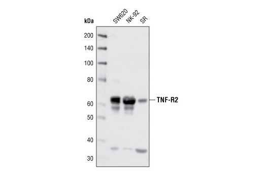 Antibody Sampler Kit Regulation of Lymphocyte Differentiation