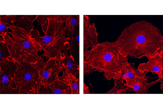 Confocal immunofluorescent analysis of COS-7 cells, at high confluency (left) or low confluency (right), using β-Actin (13E5) Rabbit mAb (Alexa Fluor<sup>®</sup> 555 Conjugate) (red). Blue pseudocolor = DRAQ5<sup>®</sup> #4084 (fluorescent DNA dye).