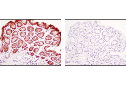Immunohistochemical analysis of paraffin-embedded mouse colon using β-Catenin (D10A8) XP<sup>®</sup> Rabbit mAb in the presence of control peptide (left) or antigen-specific peptide (right).