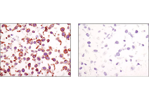 Immunohistochemical analysis of paraffin-embedded cell pellets, HeLa (left) or NCI-H28 (right), using β-Catenin (D10A8) XP<sup>®</sup> Rabbit mAb.
