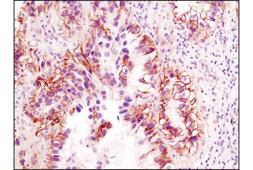 Immunohistochemistry Image 7: β-Catenin (D10A8) XP® Rabbit mAb