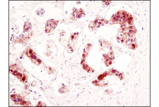 Immunohistochemical analysis of paraffin-embedded human colon carcinoma using β-Catenin (D10A8) XP<sup>®</sup> Rabbit mAb.