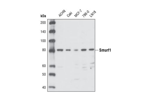 Polyclonal Antibody Western Blotting Ubiquitin-Protein Ligase Activity