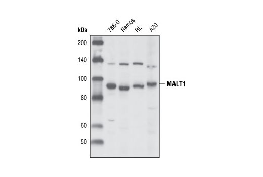 Polyclonal Antibody Response to Molecule of Bacterial Origin
