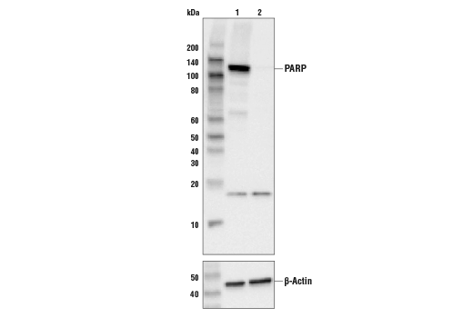 Western blot analysis of HEK293 cell extracts, untreated (-) or PARP knock-out (+), using PARP (46D11) Rabbit mAb #9532 (upper), or β-actin (13E5) Rabbit mAb #4970 (lower).