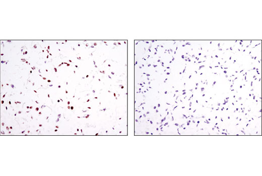 Immunohistochemical analysis of paraffin-embedded cell pellets, HaCaT (positive, left) and Hep3B (negative, right), using RARγ1 (D3A4) XP<sup>®</sup> Rabbit mAb.