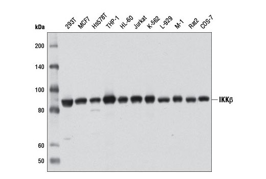 Western blot analysis of extracts from various cell lines using IKKβ (D30C6) Rabbit mAb.