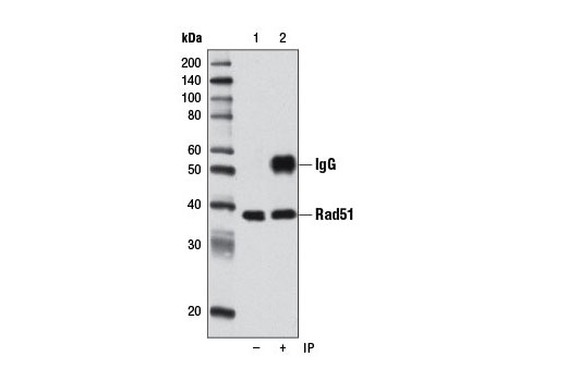 Immunoprecipitation Image 1: Rad51 (D4B10) Rabbit mAb