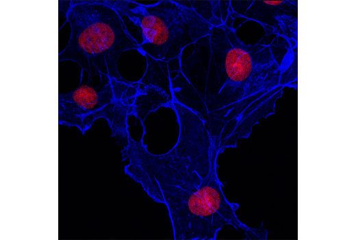 Confocal immunofluorescent analysis of COS-7 cells using β-Actin (13E5) Rabbit mAb (Alexa Fluor<sup>®</sup> 647 Conjugate) (blue pseudocolor). Red = Propidium Iodide (PI)/RNase Staining Solution #4087.