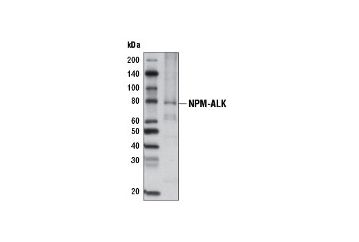 Western blot analysis of extracts from KARPAS-299 cells using ALK (C26G7) Rabbit mAb (Biotinylated). Streptavidin-HRP #3999 was used for detection. Cell Line Source: Dr Abraham Karpas at the University of Cambridge.