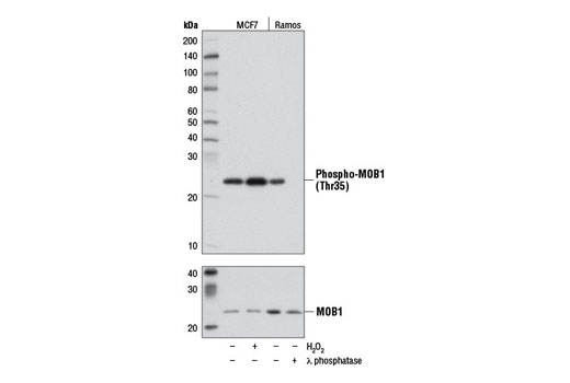 Monoclonal Antibody Immunohistochemistry Paraffin Positive Regulation of Phosphorylation