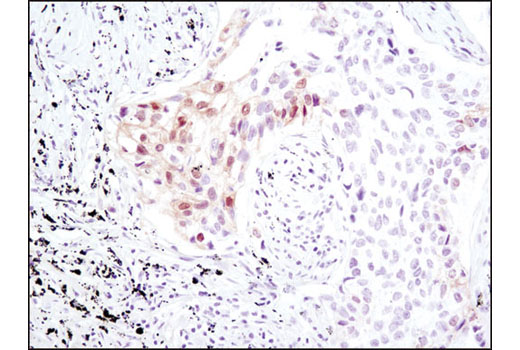 Immunohistochemical analysis of paraffin-embedded human lung carcinoma using Phospho-MOB1 (Thr35) (D2F10) Rabbit mAb.