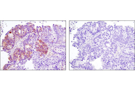 Immunohistochemical analysis of paraffin-embedded human ovarian carcinoma control (left) or lambda phosphatase-treated (right) using Phospho-MOB1 (Thr35) (D2F10) Rabbit mAb.