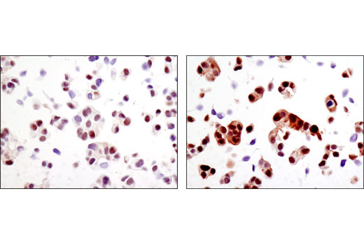 Immunohistochemical analysis of paraffin-embedded MCF7 cell pellets, control (left) or H2O2-treated (right), using Phospho-MOB1 (Thr35) (D2F10) Rabbit mAb.
