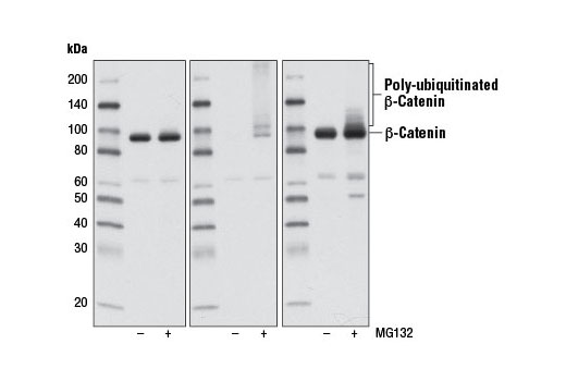 Western blot analysis of extracts from 293T cells, untreated (-) or treated (+) with MG132 (10 μM, 4 hr at 37ºC), using Non-phospho (Active) β-Catenin (Ser33/37/Thr41) (D13A1) Rabbit mAb (left), Phospho-β-Catenin (Ser33/37/Thr41) Antibody #9561 (center), or β-Catenin (6B3) Rabbit mAb #9582 (right). Note that Non-phospho (Active) β-Catenin (Ser33/37/Thr41) (D13A1) Rabbit mAb fails to detect poly-ubiquitinated β-catenin in MG132-treated cells, indicating its specificity for stabilized protein.