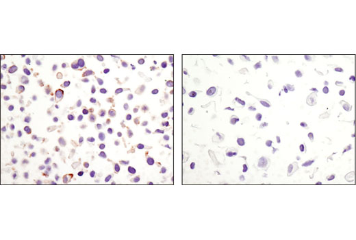 Immunohistochemical analysis of paraffin embedded cell pellets, HeLa (left) or NCI-H28 (right), using Non-phospho (Active) β-Catenin (Ser33/37/Thr41) (D13A1) Rabbit mAb.
