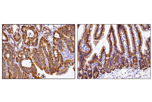 Immunohistochemical analysis of paraffin-embedded Apc (Min/+) mouse intestinal adenoma (left) and adjacent normal intestinal epithelium (right) using Non-phospho (Active) beta-Catenin (Ser33/37/Thr41) (D13A1) Rabbit mAb. Note the nuclear accumulation of active beta-Catenin in the adenoma cells.