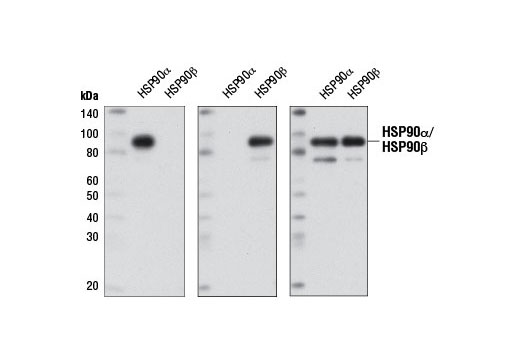 Western blot analysis of recombinant HSP90α and HSP90β purified from <i>S. frugiperda </i>(1 μg) using HSP90α (D1A7) Rabbit mAb (left panel), HSP90β (D3F2) Rabbit mAb #7411 (center panel), or HSP90 Antibody #4874 (right panel).