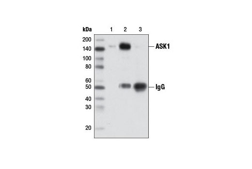 Immunoprecipitation of ASK1 from A-431 cell extracts using ASK1 (D11C9) Rabbit mAb (lane 2) or Normal Rabbit IgG #2729 (lane 3). Lane 1 is 10% input.