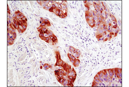 Immunohistochemical analysis of paraffin-embedded human lung carcinoma using RRM1 (D12F12) XP<sup>® </sup>Rabbit mAb.