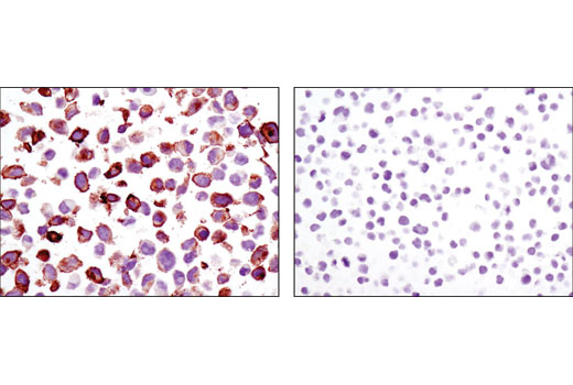 Immunohistochemical analysis of paraffin-embedded cell pellets, NCI-H1299 (left) or Jurkat (right), using Axl (C89E7) Rabbit mAb.