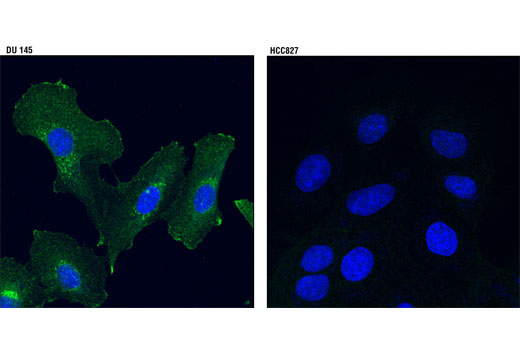 Image 20: Microglia Neurodegeneration Module Antibody Sampler Kit
