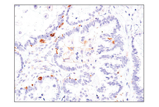 Image 42: Microglia Cross Module Antibody Sampler Kit