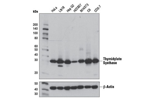 Western blot analysis of extracts from various cell lines using Thymidylate Synthase (D5B3) XP<sup>® </sup>Rabbit mAb (upper) or β-Actin (D6A8) Rabbit mAb (lower) #8457.